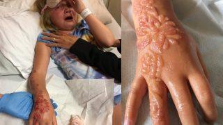 Семилетняя девочка получила химические ожоги после татуировки хной