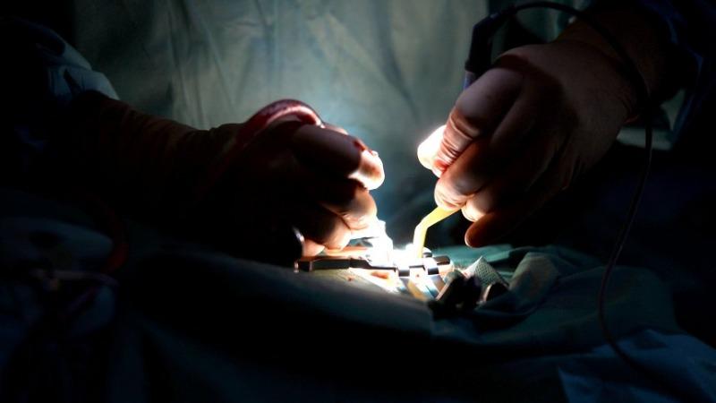 Здоровье: Врачи оперируют пациентов без острой необходимости