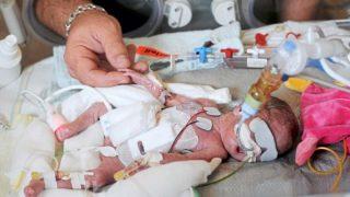 При рождении ее вес был всего 430 грамм. Теперь она школьница
