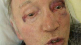 Скандал в доме престарелых: санитар избил 93-летнего дедушку
