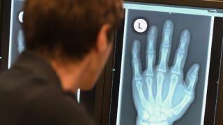 Законно ли применение рентгена для определения возраста беженцев?