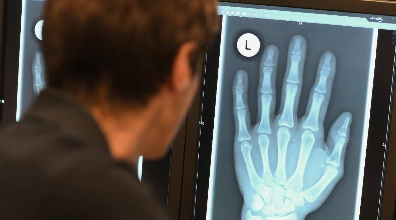 Общество: Законно ли применение рентгена для определения возраста беженцев?