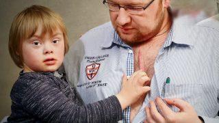Отец в поддержку сына выжег на груди такой же шрам