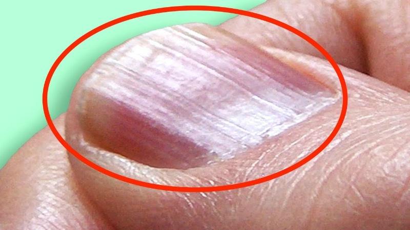 Здоровье: Проверьте свои ногти: эти отметины свидетельствуют о возможных заболеваниях