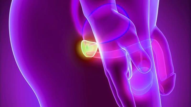 Здоровье: Новое оружие против рака предстательной железы