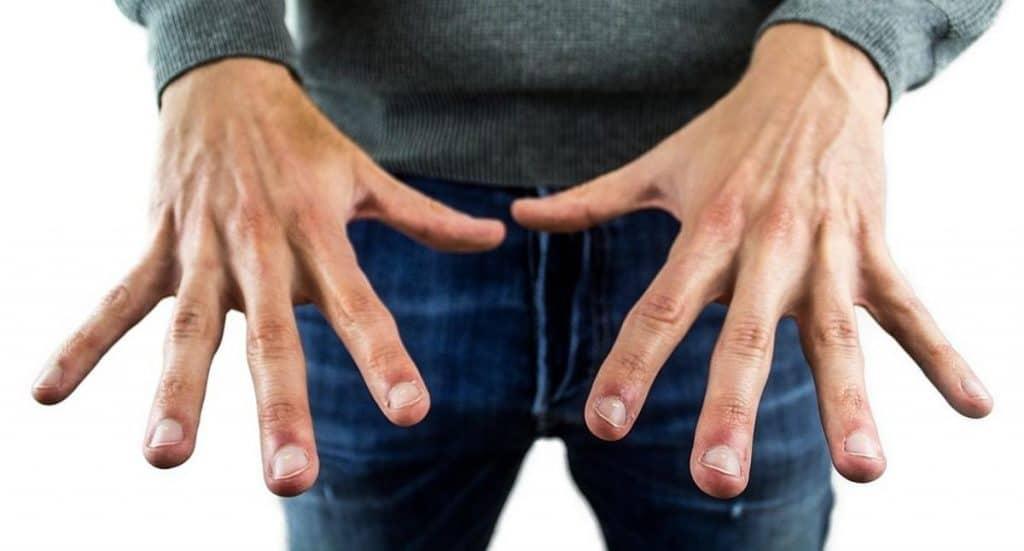 Здоровье: Белые точки на ногтях: что они означают?