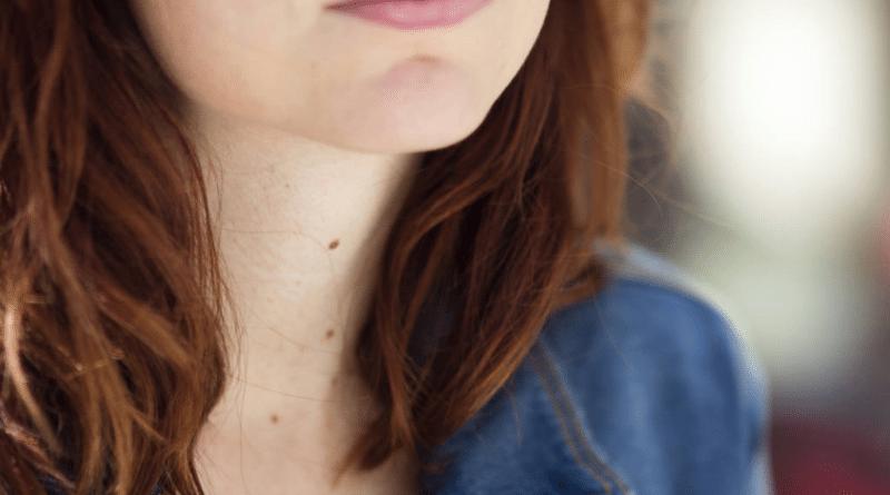 Здоровье: Почему ни в коем случае нельзя удалять родинки с помощью лазера