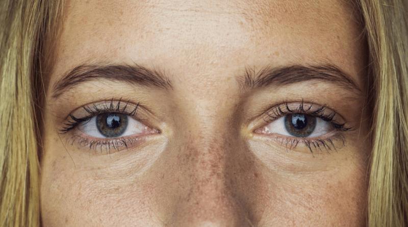 Здоровье: Темные круги под глазами: причины появления, способы устранения