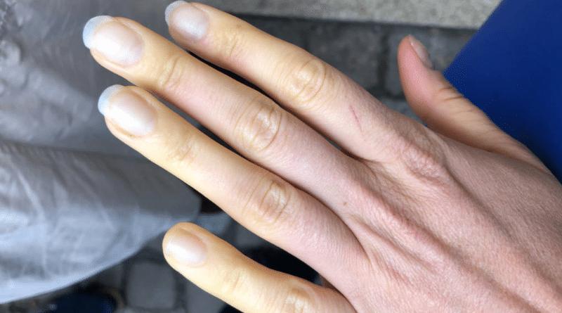 Здоровье: Синеют и бледнеют пальцы на холоде? У вас может быть это заболевание