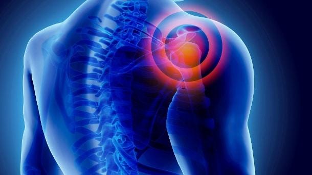 Здоровье: Что помогает при воспалении суставов