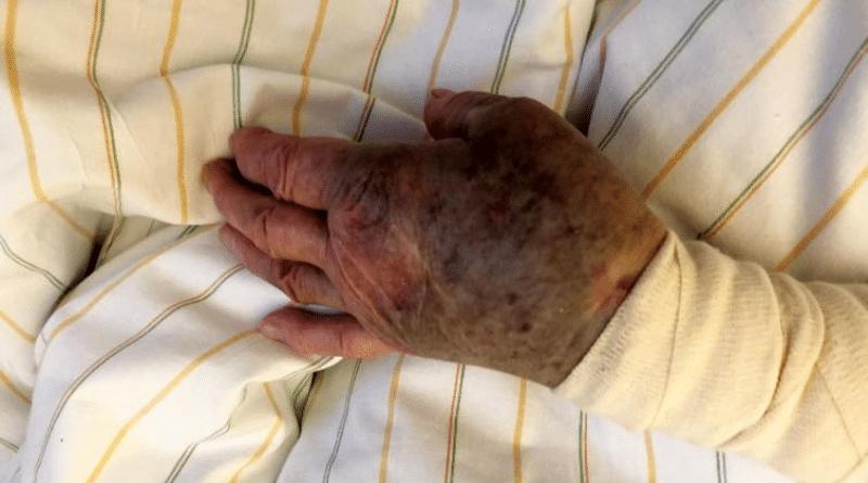 Происшествия: Преступники избили и ограбили 94-летнюю пенсионерку